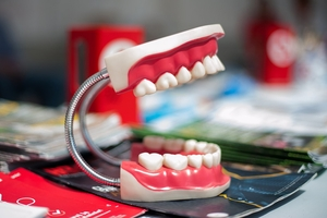 Намерете Dental Implants 28